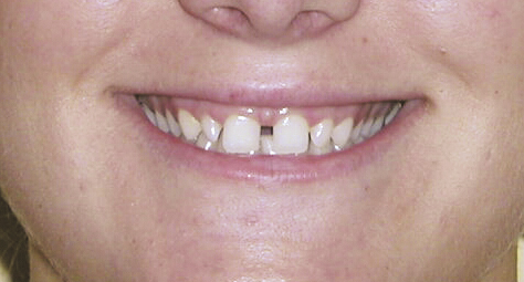 Before photo of dental treatment