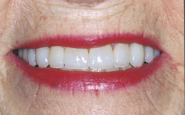 After photo of dental treatment